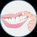 la pastille Xilimelts se colle naturellement à vos dents
